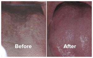 Halitosis patient tongue photos, before and after treament.