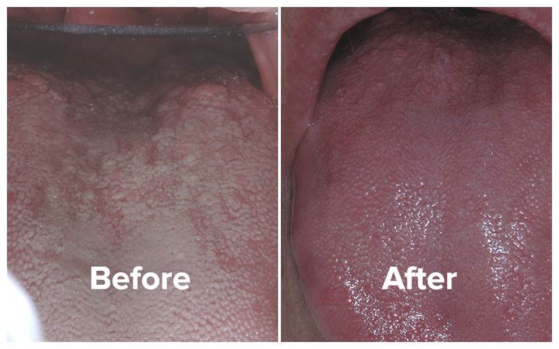 See patient Chelsea's photos before and after bad breath total cure treatment