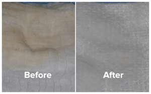 Bad breath patient gauze photos, before and after treatment.