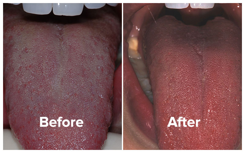 before and after photo of patient, bad breath total cure with tongue rejuvenation