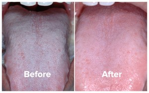 Bad breath patient tongue photos, before and after treatment