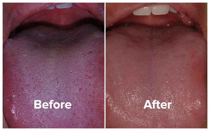Before and after tongue photo showing biofilm buildup and bad breath total cure results