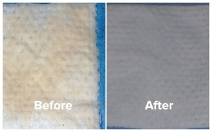 gauze photos for bad breath patient, before and after treatment.