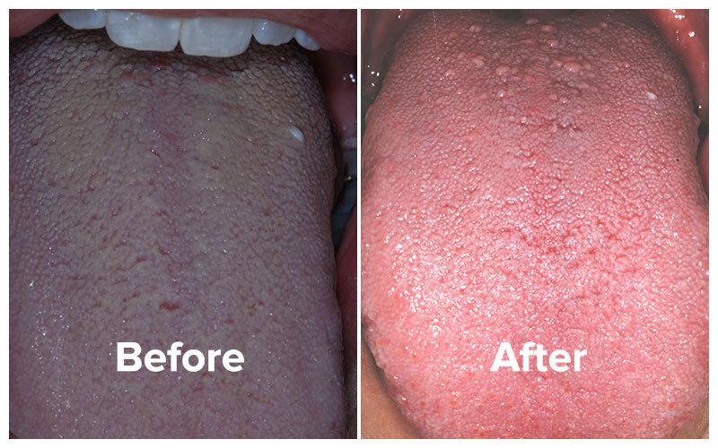 See biofilm buildup on tongue before and healthy tongue after bad breath total cure.