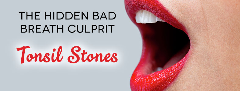tonsil stones and bad breath
