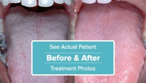 view patient before and after total cure treatment photos