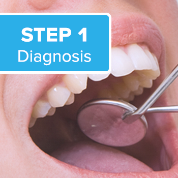 the first step in bad breath elimination is the diagnosis