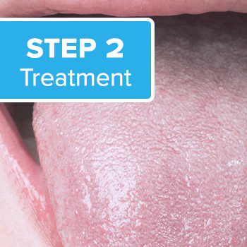 Step 2 of National Breath Center's Total Cure treatment