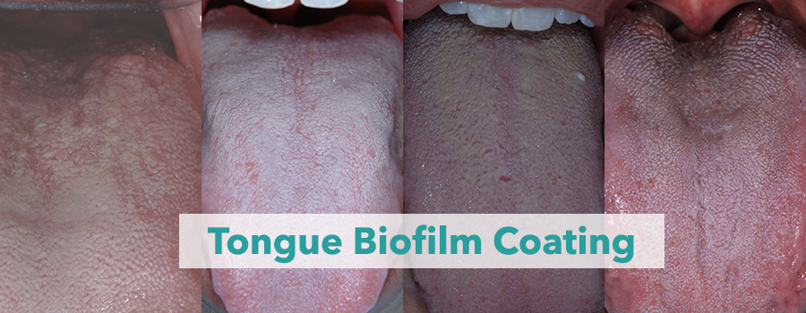 Tongue biofilm color varies from white, yellow to tan. Tongue surfaces differ, with smaller and larger tastebud sizes. Bacteria embed themselves deep in the tongue and produce sulfur-smelling odors.